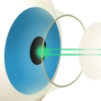 What is Laser Eye Surgery?