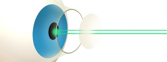 Laser Eye Surgery What Is It Lasik Com