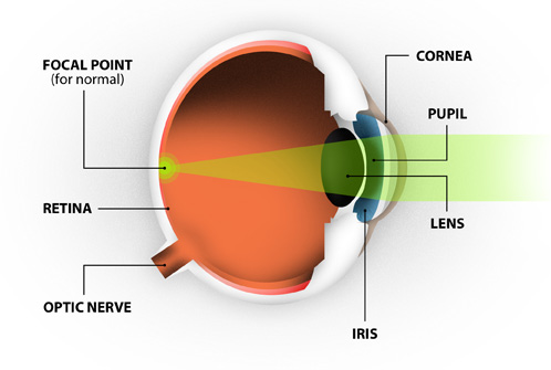 An illustration of the anatomy of the eye, including focal point, cornea, pupil, retina, iris, lens and optic nerve